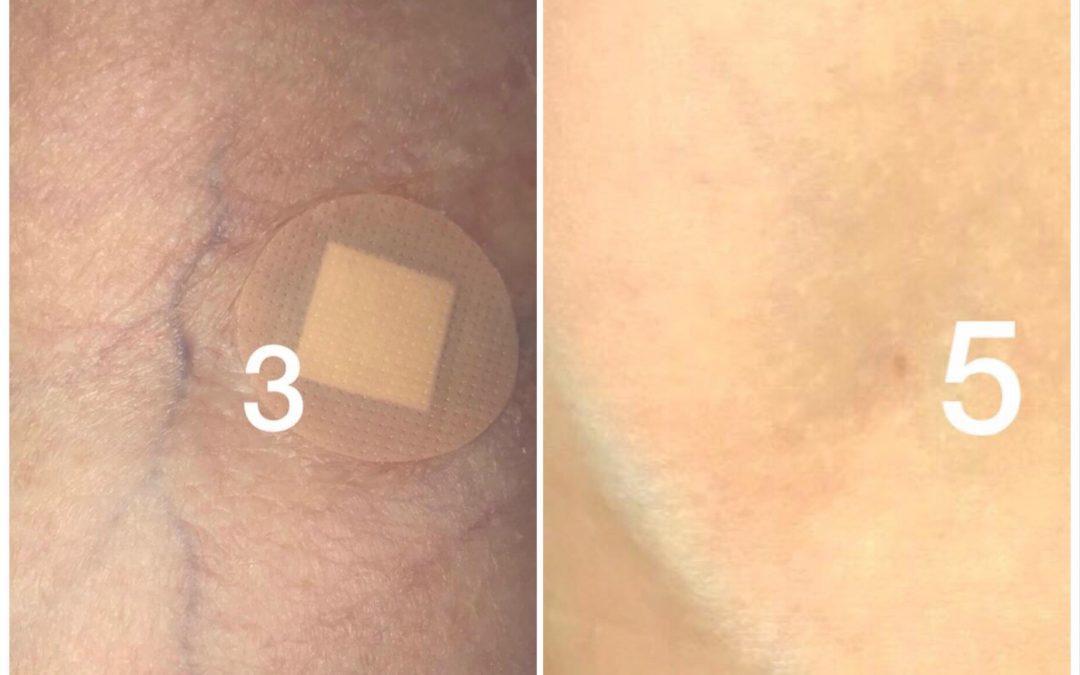 Punctia venoasa – Alegeri recoltari sange vs tratamente injectabile