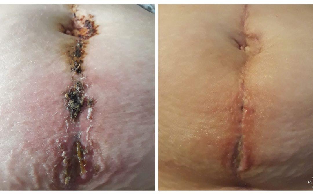 Pansamente – Ingrijire sutura