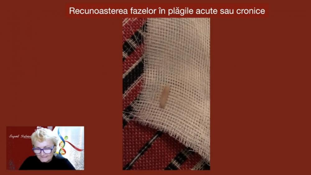 Plagi cavitare - Caz 1