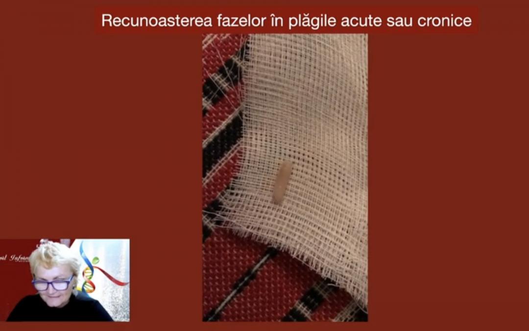 Cazuri – Plagi cavitare – Caz 1