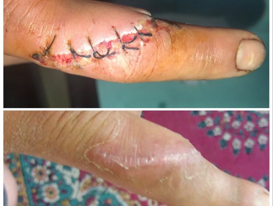 Cazuri – Plaga prin taiere cu flex